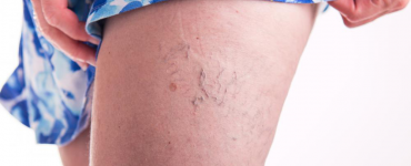 Image showing Sclerotherapy treatment for varicose